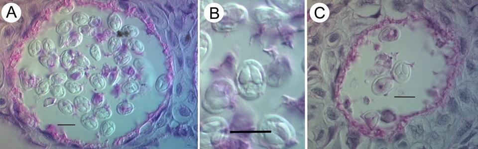 bakteri2